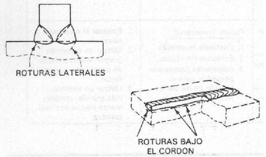 Figura 1.3 Tipos de fracturas internas.